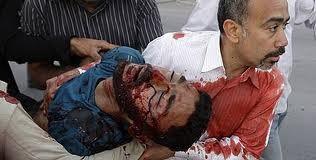 Bahrain 2011 február sebesültek