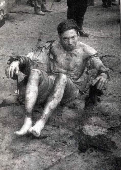 Bauer Sándor 1969-ben gyújtotta fel magát; január 23.-án belehalt 3. fokú égési sebeibe.