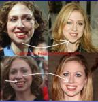Chelsea Clinton szépségsebészeti beavatkozásainak leleplezése