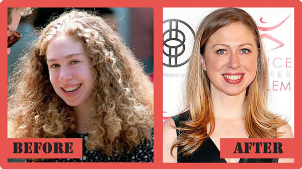 chelsea-clinton-plastic-surgery-before-after