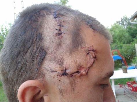 Csörögi cigány támadás 2014 07. 19. A rendőrség szerint ez nyolc napon belül gyógyuló sérülés!!!